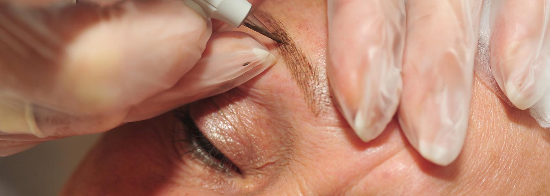 Eyebrow Treatment in progress