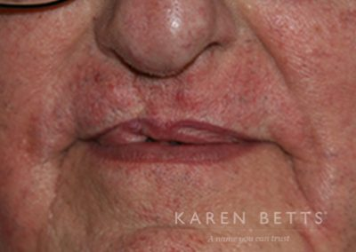 cleft-lip-2-after