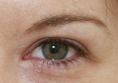 eyes-3-before