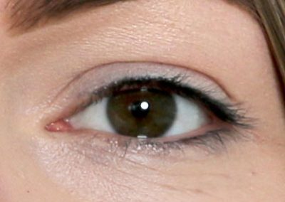 eyes-7-before