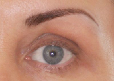 eyes-8-before