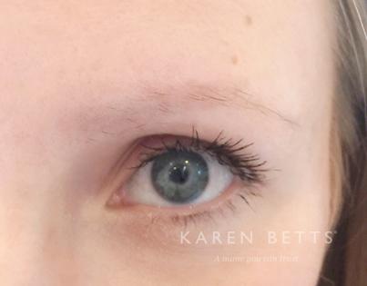 Hair Loss Karen Betts