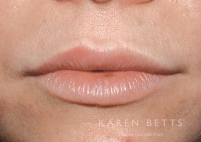 lips-2-before