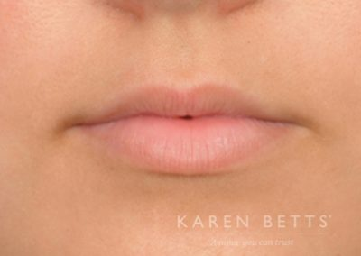 lips-7-before
