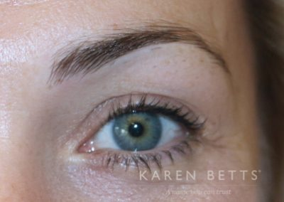 microblading-13-before