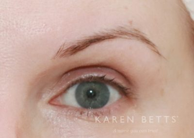 microblading-2-before