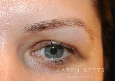 microblading-20-before