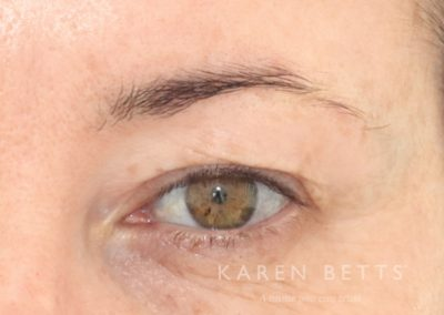 microblading-6-before