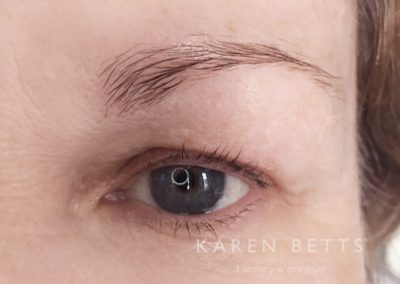 microblading-7-before