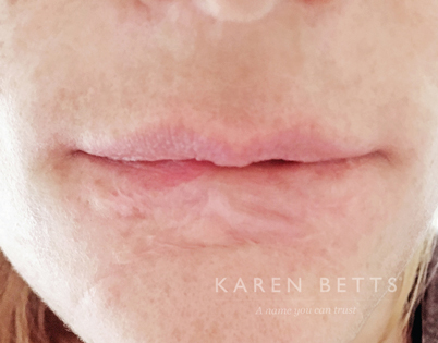 Scars and Burns   Karen Betts