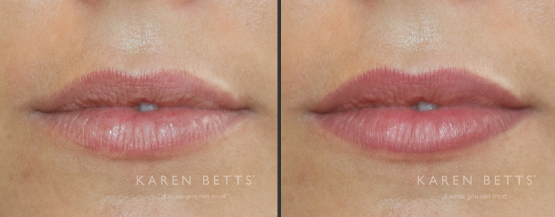 Lips | Karen Betts