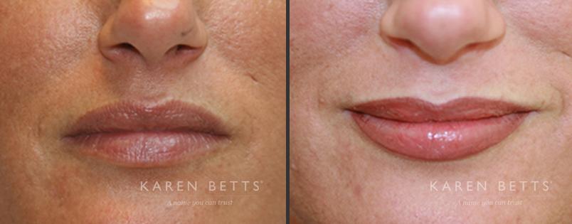 Lips   Karen Betts