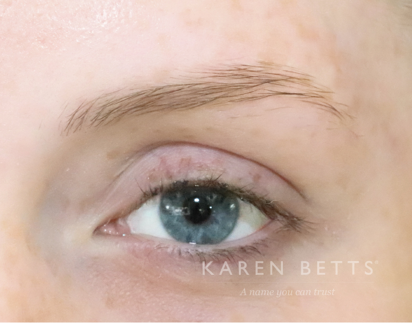 microblading-30-before