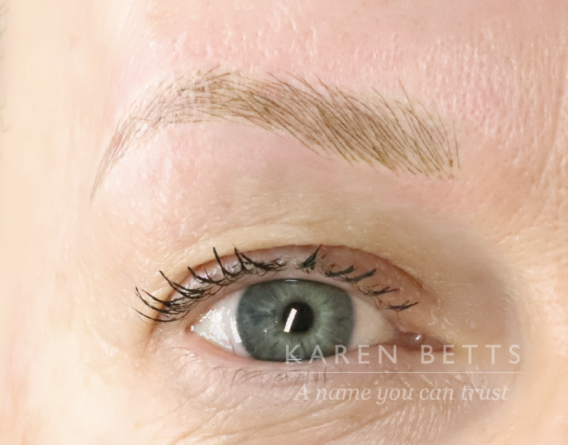 215_BROWS_AFTER@2x